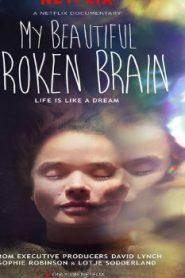 My Beautiful Broken Brain (2014) Online Free Watch Full HD Quality Movie